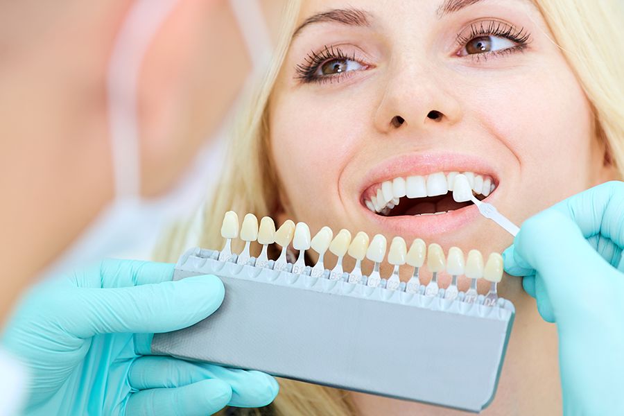 dental implant colour matching